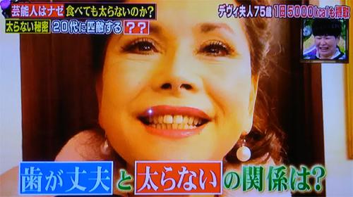 「デヴィ夫人 歯」の画像検索結果